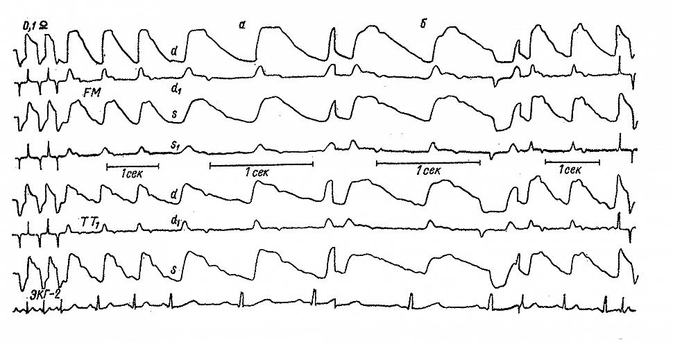 РЭГ и реограммы больной П. с мигренью