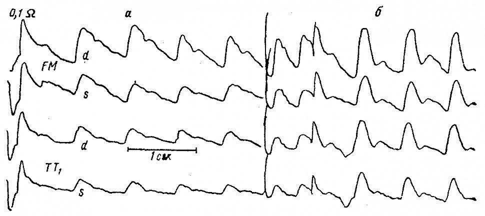 РЭГ больной С. с мигренью