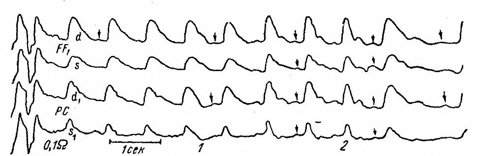 Динамика регионарных лобных (FF1) и теменно-центральных (PC) РЭГ больного
