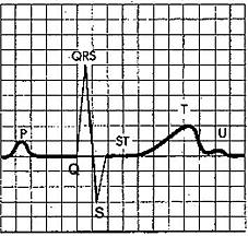 Рисунок 2. Нормальный ЭКГ-комплекс