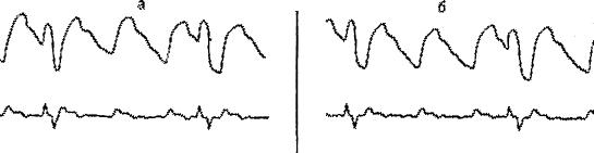 Рис. 48. Отрицательная проба с нитроглицерином. Отсутствие нормализации РЭГ. а - исходная РЭГ, б - проба с нитроглицерином