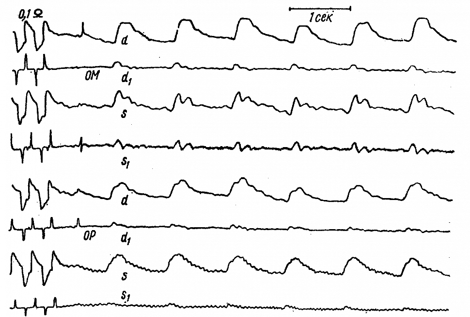Затылочные РЭГ больного О. с полной закупоркой правой позвоночной артерии