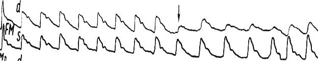 Рис. 49. Проба с пережатием общей сонной артерии справа у здорового пациента. Снижение амплитуды РЭГ на стороне прижатия
