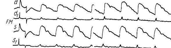Рис. 6. Амплитудная асимметрия, обусловленная неточным балансированием реографа