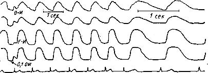 РЭГ больного О., с резко выраженным атеросклерозом мозговых сосудов