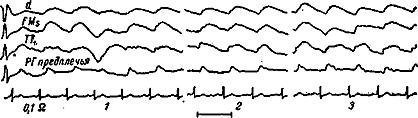 Реограммы больших полушарий (ЛМ), кожно-мышечного покрова виска (ТГ1— справа) и предплечья (справа) больной Б. с выраженным церебральным атеросклерозом.