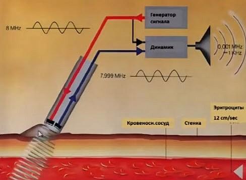 При отражении от движущихся клеток крови изменяется частота ультразвукового сигнала