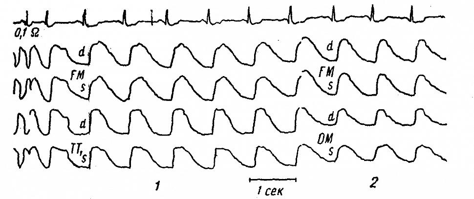 Полушарные РЭГ (FM) и реограммы кожно-мышечного покрова виска (ТТ) больного Б.