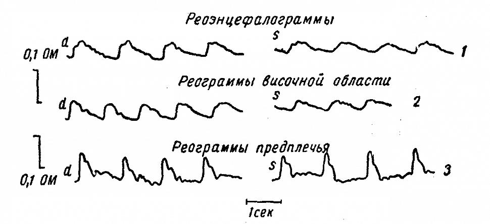 Реограммы больной Л. (гипертоническая болезнь с наклонностью к локальным мозговым сосудистым кризам)
