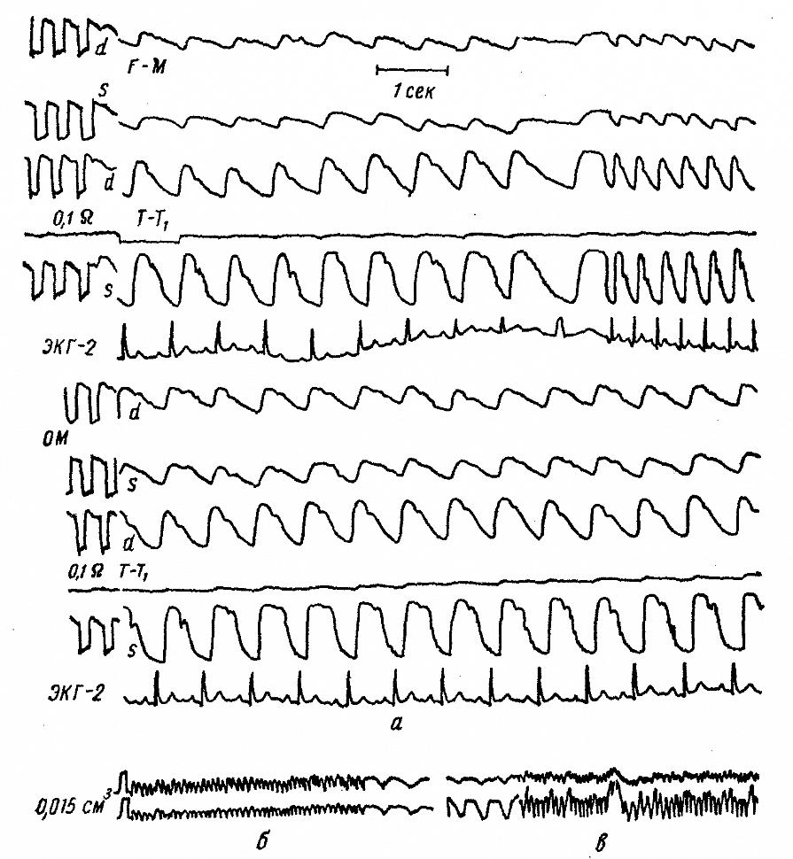 РЭГ больного С. с двусторонней закупоркой внутренней сонной артерии