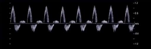 CW+PW=Спектральный допплеровский режим («допплер»)