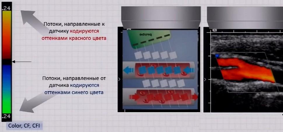 Цветовое допплеровское картирование кровотока (ЦДК)