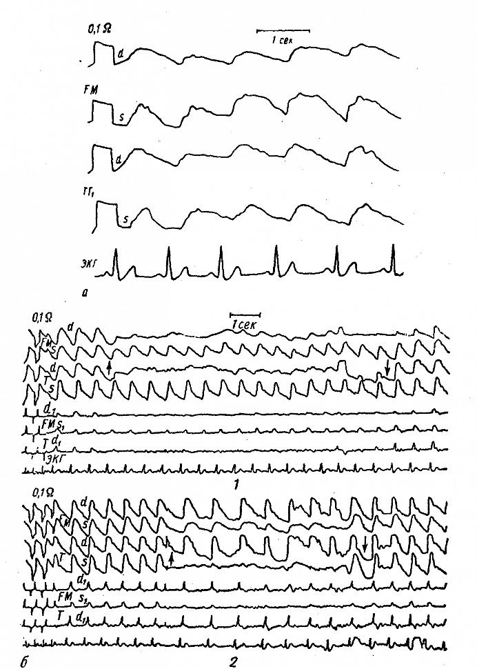 Полушарные (FM) и височные (ТТ1) реограммы больного Т. с двусторонней закупоркой внутренней сонной артерии