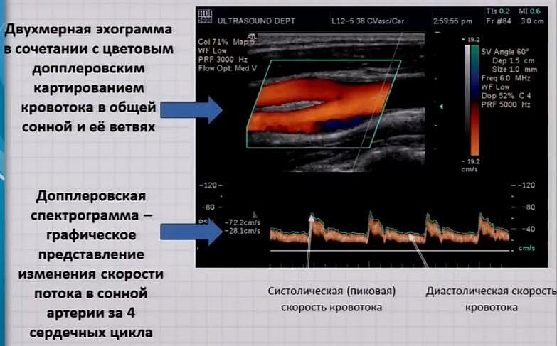 Триплексное сканирование с цветовым допплеровским картированием (ТС с ЦДК)
