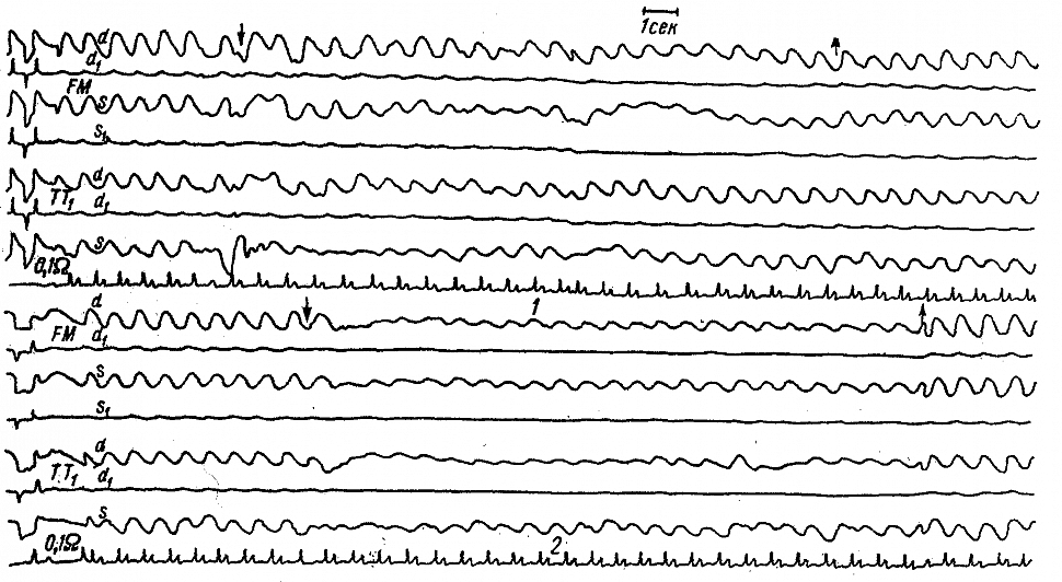 Межполушарная асимметрия РЭГ у больного Х., 50 лет, со стенозом левой внутренней сонной артерии