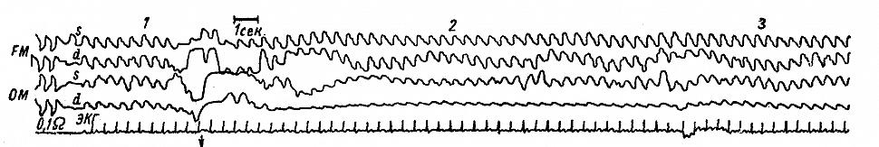 Динамика РЭГ у больной К., с гипоплазией правой позвоночной артерии.