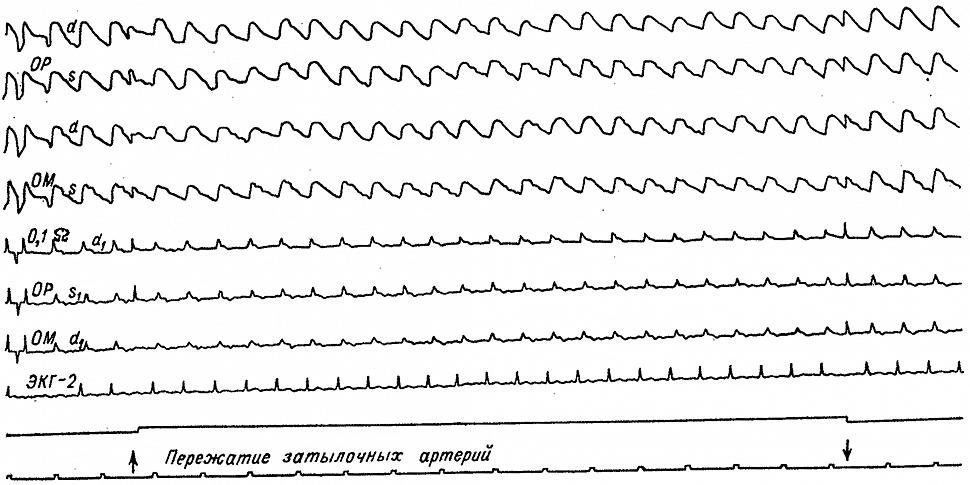 Динамика затылочных РЭГ у больного Д. с преходящим нарушением кровообращения
