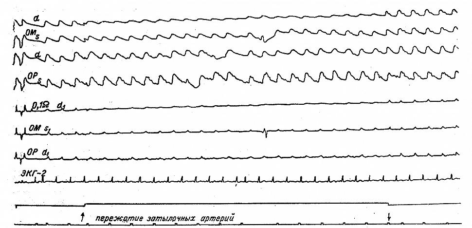 Динамика РЭГ у больного А. со стенозом правой позвоночной артерии на уровне остеофита
