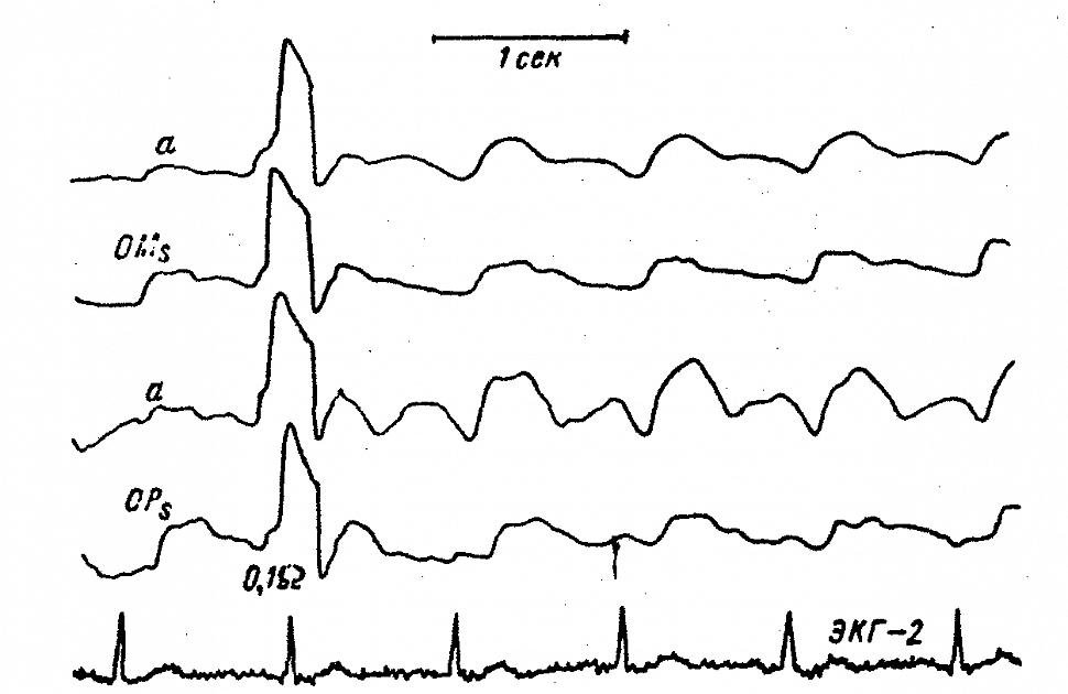 Затылочные РЭГ больного С. с окклюзией левой позвоночной артерии
