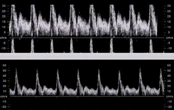Спектральный допплер, настройки. Автооптимизация допплеровского спектра